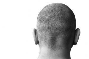 bald head 1 por chux en Stock.XCHNG